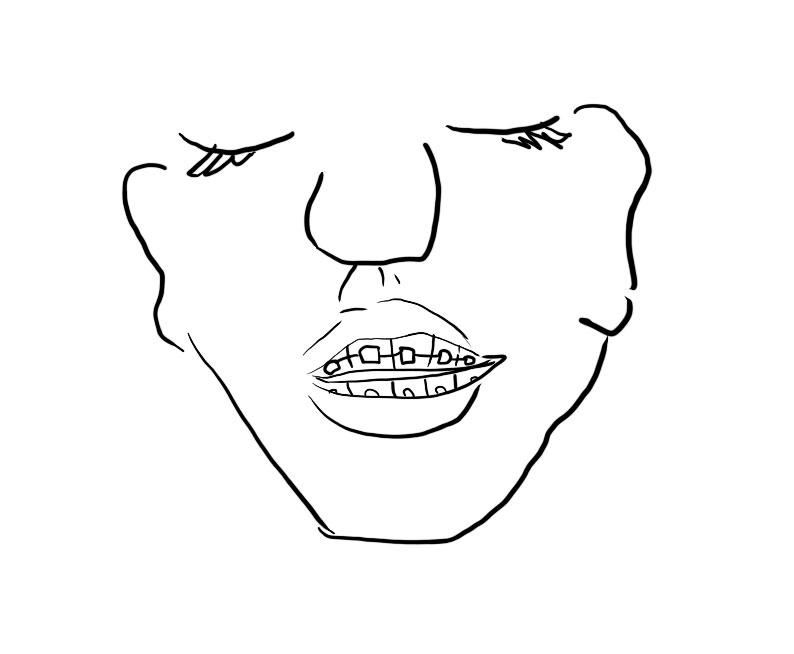 Breketi-braces